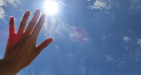 熱中症日光